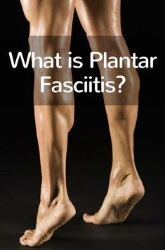 Plantar fasciitis is the most common cause of heel pain; this is usually degener. Plantar fasciitis is the most common cause of heel pain; this is usually degeneration of the plantar fascia that supports the arch of your foot. Remedies For Plantar Fasciitis, What Is Plantar Fasciitis, Plantar Fasciitis Stretches, Plantar Fasciitis Support, Plantar Fasciitis Treatment, Sciatica Pain Treatment, Foot Pain Relief, Natural Headache Remedies, Stem Cell Therapy