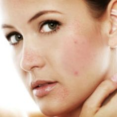 Home Remedies For Open Pores - Natural Cure & Herbal Treatment For Open Pores   Search Home Remedy