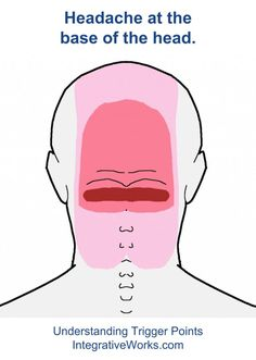 Understanding Trigger Points - Headache at the base of the head that extends comes from the neck and extends up the back of the head.