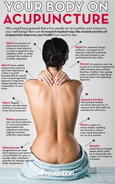 Just a bit of what acupuncture can help!