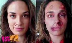 Woman's shocking photos taken over a year show the abuse she went through