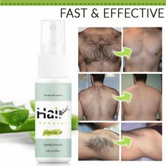 Natural Permanent Hair Removal Spray – DearSnowdrop #HairRemovalDiy Hair Removal Spray, Leg Hair Removal, Sugaring Hair Removal, Hair Removal Cream, Natural Hair Regrowth, Natural Hair Removal, Natural Hair Styles, Arm Hair, Dull Hair
