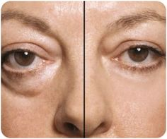 Home Remedies for Treating Eye bags
