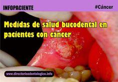 cáncer-salud-bucodental