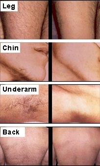 The point scottsdale laser facial hair removal join