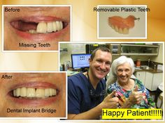 Dental Implant Bridge in Pasadena, Texas 77504. Dr. Nugent is a Top Implant Dentist.