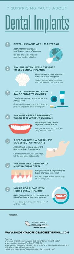 Dental implants can help keep your jawbones strong once you lose a tooth! Look through this infographic to learn more surprising facts about dental implants and learn how they can help you.  #infographic #datavisualization #dental #implant