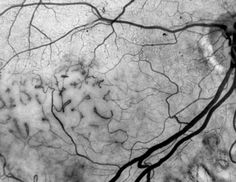brain xray textures - Google Search Varicose Veins, Ink Illustrations, Abstract Pattern, Brain, Texture, Eyes, Google Search, Photography, Inspiration