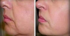 As we age, the elasticity and tightness of our skin significantly reduces, which in turn leads to wrinkles and sagging skin. Fortunately, you can effectively reduce the wrinkles and sagging skin with the help of [. Beauty Care, Beauty Skin, Beauty Hacks, Natural Teething Remedies, Natural Cures, Natural Life, Natural Skin, Natural Health, Les Rides