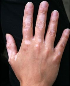 white spots on skin and Home remedies