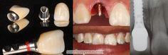 Un implante dental es un dispositivo de titanio muy parecido a un tornillo que sustituye a la raíz de un diente natural. Se coloca en el hueso y sirve como anclaje para colocar encima la corona o prótesis, que será funcional y estética, igual que un diente natural y de larga durabilidad si se le dan los cuidados adecuados.