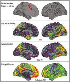 Es interesante mencionar como las personas con alzheimer guardan recuerdos en relación con la música. Se piensa que puede ser así debido a que se podrían guardar en áreas cerebrales distintas.  Referencias: Jacobsen, J., Stelzer, J., Fritz, T., Chételat, G., La Joie, R., & Turner, R. (2015). Why musical memory can be preserved in advanced Alzheimer's disease. Brain, 138(8), 2438-2450. http://dx.doi.org/10.1093/brain/awv135  Criado, M. (2017). El alzhéimer no puede con la música. EL PAÍS.