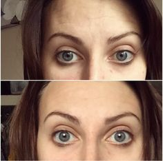 NuSkin instant line corrector after one use