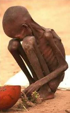 ☠   Shame! Stop wars and feed the hungry wherever they are! Shame on us if we take no action.