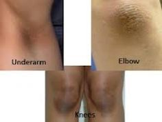 Tips To Get Rid Of Black Knees And Elbow