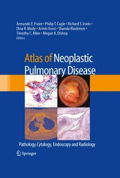 Atlas of Neoplastic Pulmonary Disease: Pathology, Cytology, Endoscopy and Radiology by Richard S. Irwin. $157.24. 176 pages. Publisher: Springer; 2010 edition (January 11, 2010)