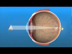 Farsightedness: What Is Hyperopia? - American Academy of Ophthalmology