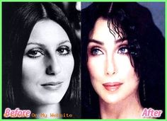 Cher Nose Job Plastische Chirurgie Vorher und Nachher - www. - aesthetic aesthetic surgery job job before and after remodelling Bad Plastic Surgeries, Plastic Surgery Before After, Plastic Surgery Gone Wrong, Botox Before And After, Rhinoplasty Before And After, Celebrities Before And After, Celebrities Then And Now, Famous Celebrities, Beauty