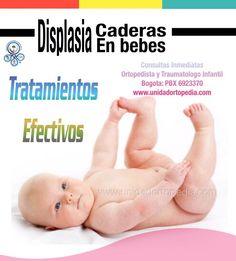 Tratamientos y consultas inmediatas en Displasia del desarrollo de la cadera en Bogotá. Especialistas en Ortopedia pediatrica. La Unidad Especializada en Ortopedia y Traumatologia www.unidadortopedia.com PBX: +571-6923370, Móvil: +57-3175905407, Bogotá, Colombia.