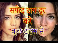 safed daag ke nuskhe in hindi and urdu |vitiligo treatment in hindi and ...