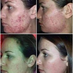 Acne or scars fade using this Serum, new to Europe, one of many amazing products from the Jeunesse range of health and beauty products. Dna Repair, Scar Treatment, Under Eye Bags, Aloe Vera Gel, Acne Scars, Pimples, Anti Aging Skin Care, Cleanser, Health And Beauty