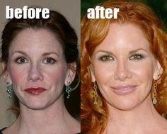 Celebrity Melissa Gilbert Plastic Surgery