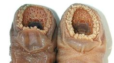 Trypophobia is an intense fear of holes in the skin that ...