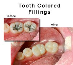 However, some people still prefer going for silver fillings, probably they aren't aware of the tooth colored fillings. So, if you are one of them then you need to re-consider your statement and have a look at the following benefits of colored filling that would definitely change your mind