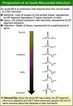 Progression of Acute Myocardial Infarction (AMI) on ECG Nursing Tips, Nursing Notes, Ekg Interpretation, Nursing Information, Myocardial Infarction, Critical Care Nursing, Cardiac Nursing, Sr1, Health And Fitness