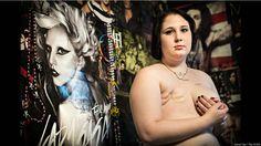 FOTOS: el verdadero impacto de una mastectomía por un cáncer de mama