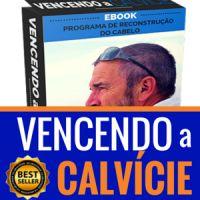 Calvície – A Solução Definitiva: Calvície – A Solução Definitiva