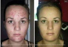 Dale brillo a tu rostro y elimina el acné para siempre! !