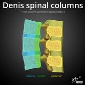 The three-column concept of thoracolumbar spinal fractures (of Denis) forms the basis of a number of widely used thoracolumbar spinal fracture classification systems. Usage While the three-column concept was initially developed for classificati. Spinal Column, Post Traumatic, How To Become, Articles, Study, Concept, Medical Illustrations, Bones, Brain