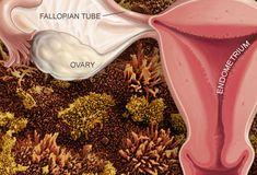 endometriosis illustration; Slideshow: A visual guide to endometriosis
