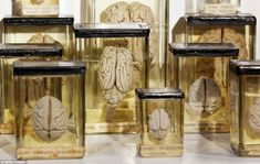 Popular pieces: There is also a comparative anatomy collection displaying the differences between the brains of a number of mammals and a reptile. Each brain is preserved in alcohol and suspended in glass jars with thread; Grant Museum of Zoology