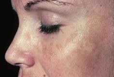 <p>Melasma é um distúrbio que provoca o aparecimento de manchas de tom castanho na pele. Suas principais causas são desequilíbrios hormonais na gravidez e o uso de pílulas anticoncepcionais Melasma ou qualquer tipo de mancha na pele são muito desagradáveis. Eles mexem com nossa auto-estima, pois atingem em cheio a …</p>