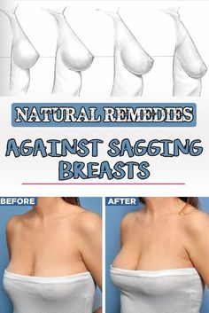 Every woman wants to have perfectly shaped breasts throughout her life. Sadly, this is not possible in most cases. Breast sagging is a natural process that happens with age where the breasts lose t…