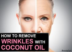 How to Remove Wrinkles Quickly with Coconut Oil Coconut oil is known to be one of the popular massage oil especially for facial skin. Here we discussed home based methods to use coconut oil for wrinkles Coconut Oil For Teeth, Coconut Oil Hair Mask, Coconut Oil Uses, Benefits Of Coconut Oil, Organic Coconut Oil, Face Wrinkles, Prevent Wrinkles, Wrinkle Remover, Massage Oil
