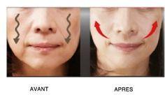 4 astuces pour rehausser les joues affaissées