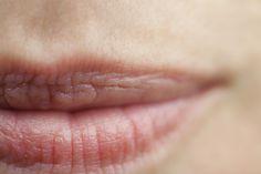 Dry Lip Solutions by Osmia Organics    http://www.osmiaorganics.com/lip-repair/lip-gloss/lip-balm/