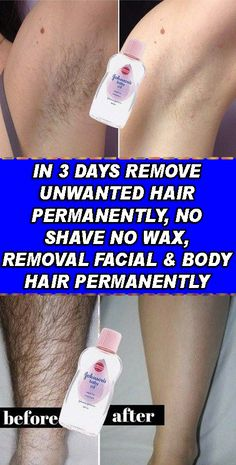 remove unwanted hair permanently/remove unwanted hair/remove unwanted hair with vaseline/remove unwanted hair naturally/remove unwanted hair permanently bikinis/Remove Unwanted Hair/ Chin Hair Removal, Hair Removal Methods, Hair Removal Cream, Laser Hair Removal, Remove Unwanted Facial Hair, Unwanted Hair, Laser Hair Therapy, Electrolysis Hair Removal