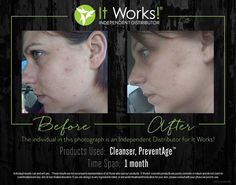 Our skincare line is fantastic for helping with acne breakouts