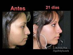 If this is same person, nose job & chin implant or jaw repositioning.  Cirugía Plástica Estética y Reconstructiva México