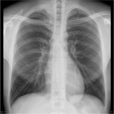 36 Best Xrays images in 2019 | X rays, Pediatric radiology