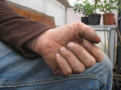 """Some call them """"green fingers"""" - they are usually more brownish."""