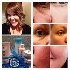 Here are Gina's before and after pictures. She has been using R+F's Redefine regimen, Amp MD Roller and EYE CREAM for only 2 weeks. Notice how her skin has completely changed. Her pores are getting smaller, her skin is a lot smoother and to think she has just started! I can't wait to see what her results will be in a couple of weeks! Message me to get started on your transformation! http://iarman.myrandf.com