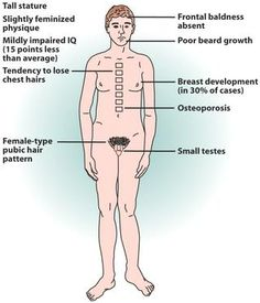 Klinefelter syndrome xxy karotype not a hereditary disorder but a