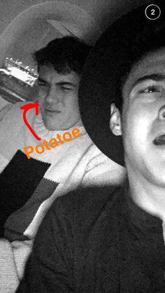 Dolan twins, Grayson's potatoe face