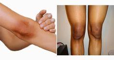 Cómo deshacerse de los codos y rodillas oscuras. La acumulación de piel gruesa y muerta hace que la piel se vuelva negra.
