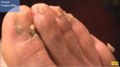 foot fungus home remedies, home remedies to kill foot fungus